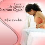 cara atasi cyst dan fibroid