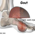 cara atasi gout dengan set gout shaklee