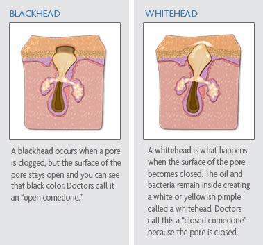 cara atasi blackhead dan whitehead